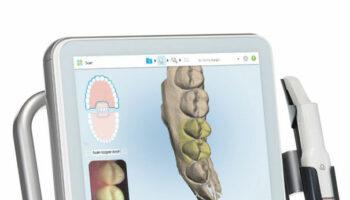 Kieferorthopädie - Digital Scanner